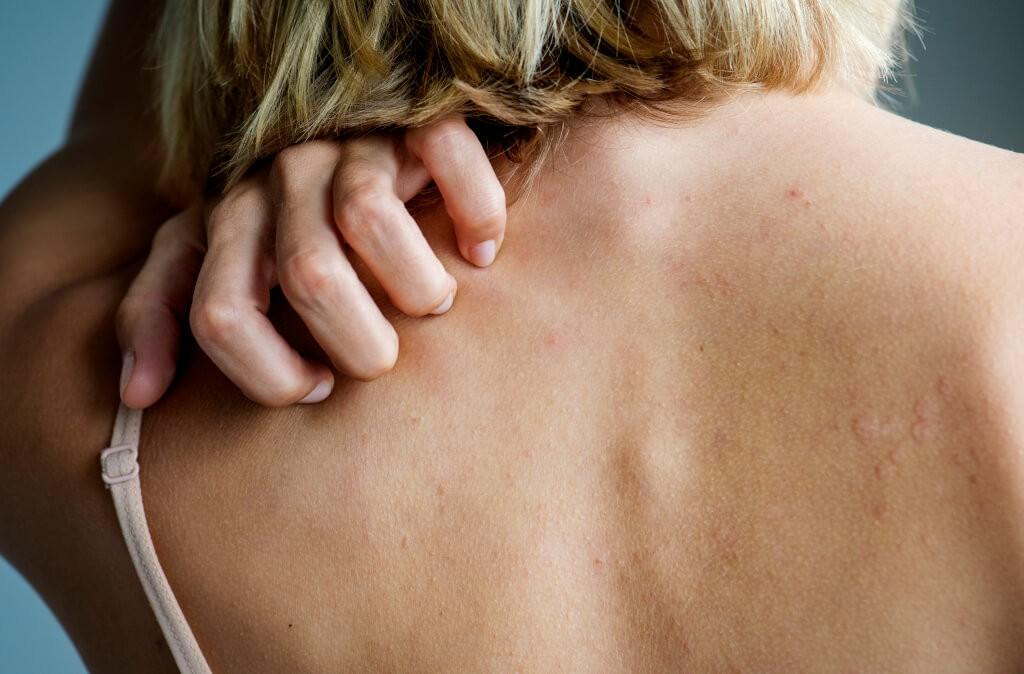 Жена почесва гръб с псориазис