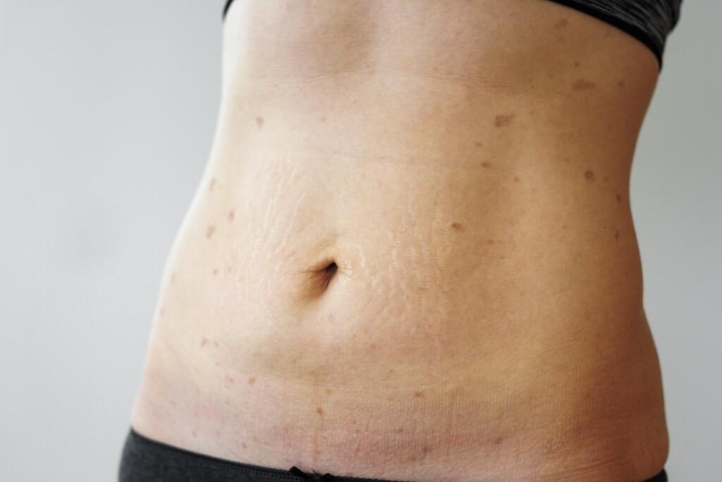 Женски стомах с Псориазис